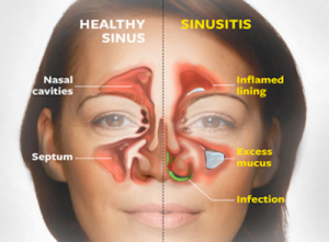 fight-sinus-infection-naturally