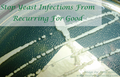 glass petri dish yeast infection