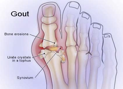 gout-image