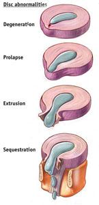 herniated-bulging-discs-natural-cure