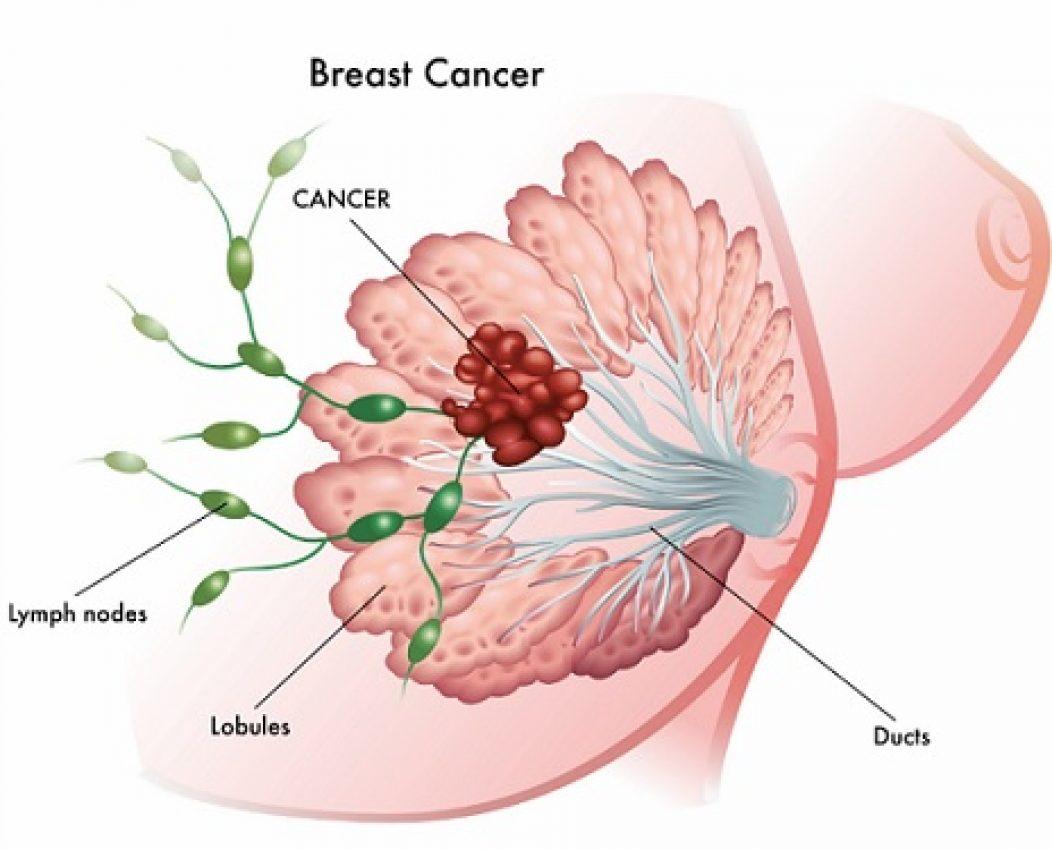 Deodorant Alternatives for Avoiding Breast Cancer