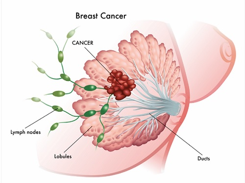 breast-cancer-prevetion
