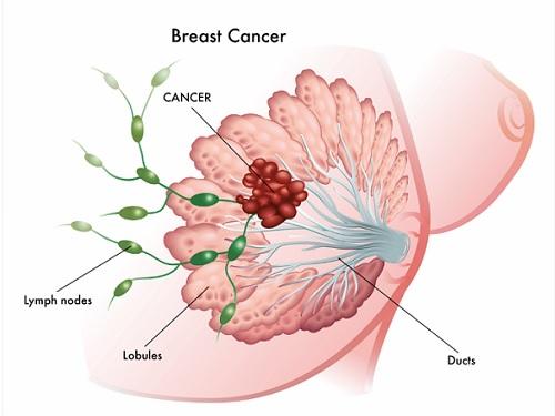 breast-cancer-prevetion