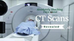 Absolutely Shocking Data About CT Scans (Plus Ways to Protect Yourself)