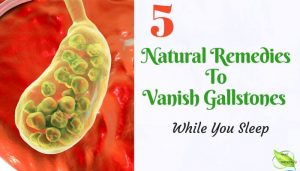 remedies for gallstones banner