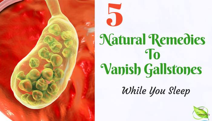 natural remedies for gallstones image